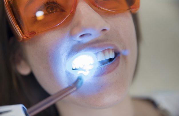 Kako ohraniti čudovite zobe?