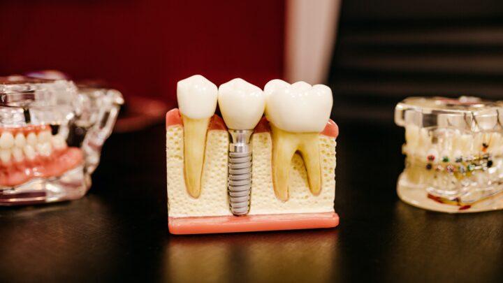 Zobni implantat je majhen vijak iz titana
