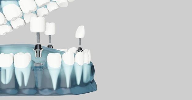 Učinkovito proti zobnim nadlogam